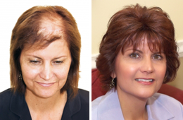 services-hair-restoration
